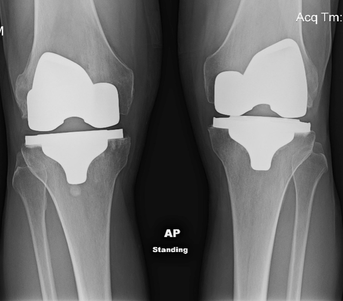 X-ray image of John Wood's knees one year after left knee replacement. (courtesy photo)